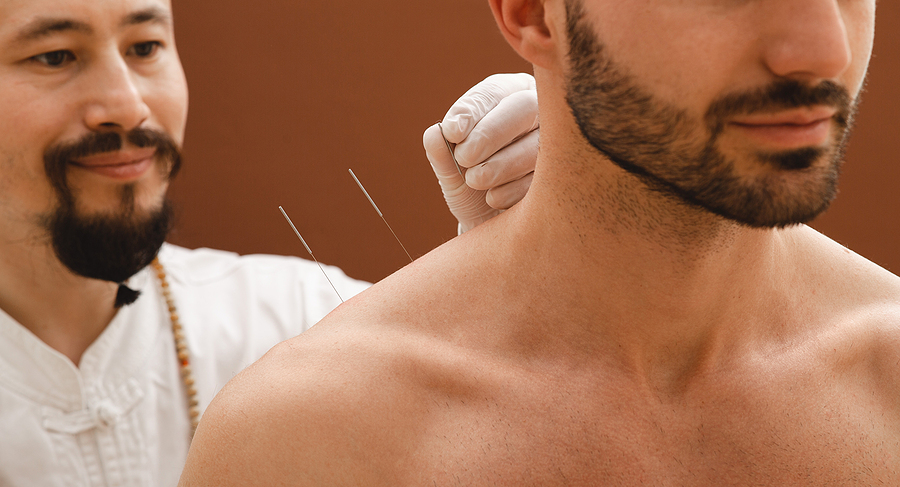 Man receiving an acupuncture for shoulder pain